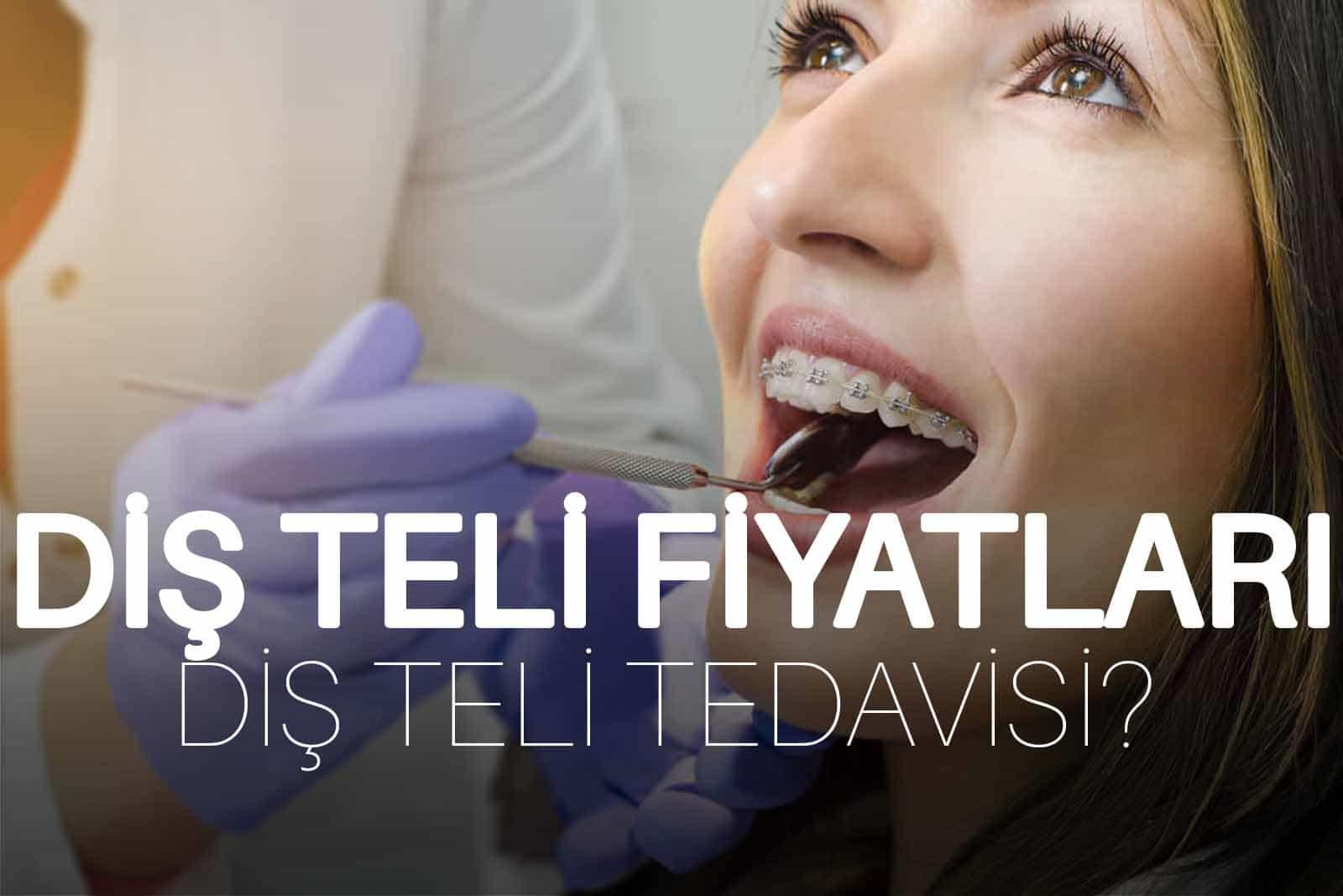 Diş Teli Fiyatları 2019 – Diş Teli Tedavisi Fiyatı</a>