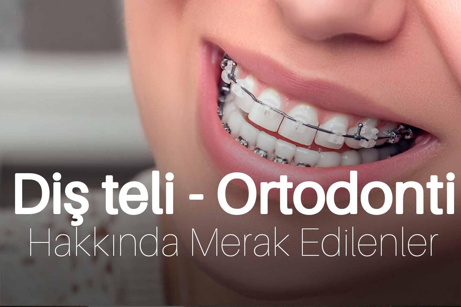 Diş teli – Ortodonti Tedavisi Hakkında Merak Edilenler